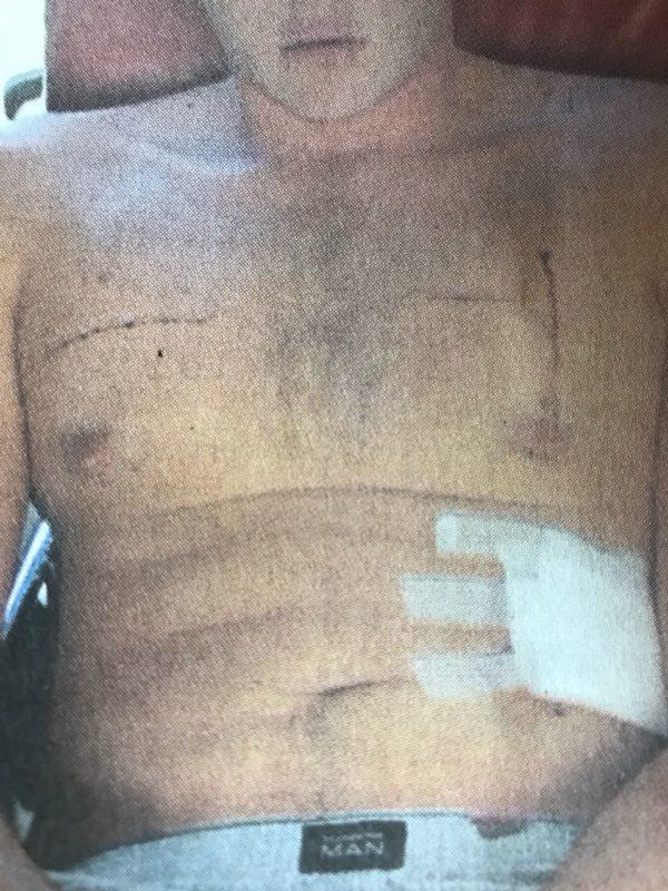 Henri Van Breda injuries