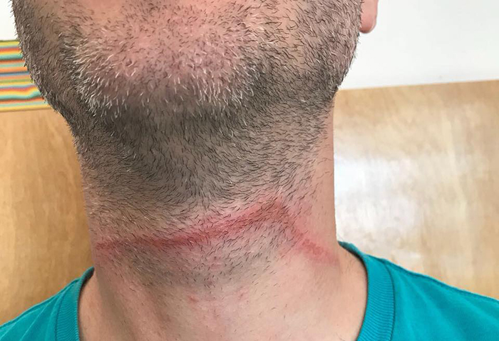Cyclists targeted by wire traps
