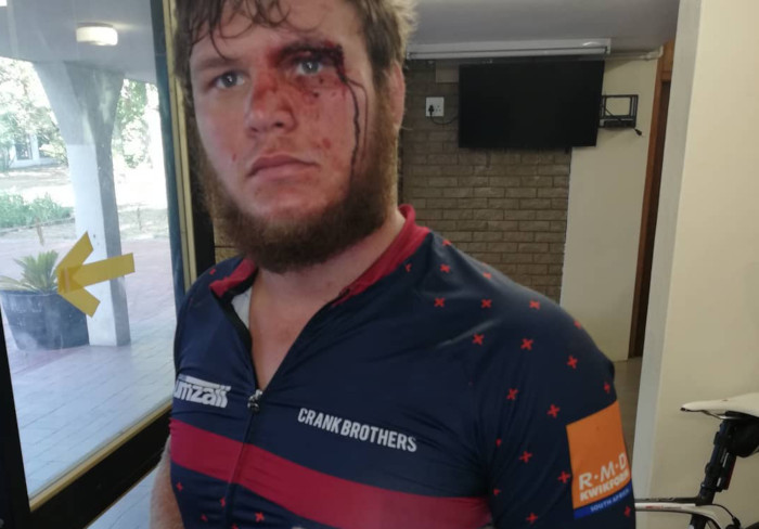 Two cyclists violently attacked in Stellenbosch